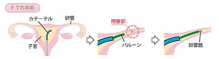 FT(卵管鏡下卵管形成術)